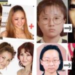 芸能人の整形前と整形後を比較した衝撃動画!NHKひよっこに出演中のあの女優も実は・・!?【閲覧注意】